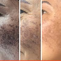 Aging Blacks Pots Removal With Co2 Laser