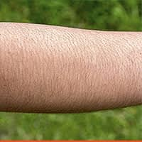 FORE-ARM-hair-removal
