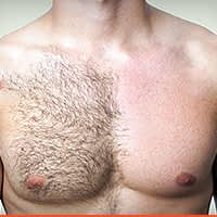 Hair-Removal-breast