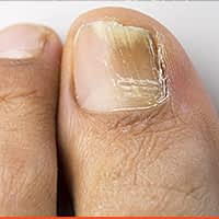 Onychomycosis (Nail Fungal Infection)
