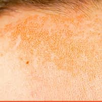 Pigmentation Reduction With PICO 450 Laser