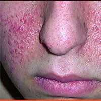 Tuberous Sclerosis Removal