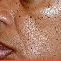 Aging Black Spots removal