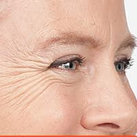 Crow's Feet Reduction With Botox