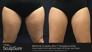 Sculpsure - Before & After