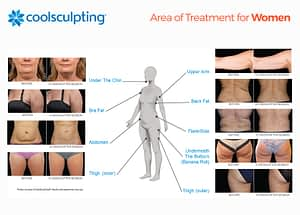 Coolsculpting Fat Reduction for Women