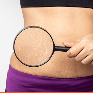 stretch marks removal treatment in kochi, Ernakulam