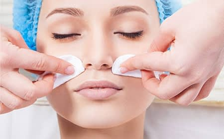 chemical peel treatment in Kochi