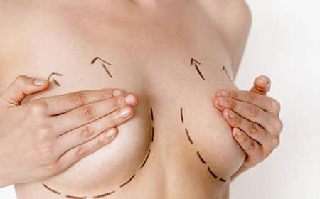 breast lifttreatment in Kochi