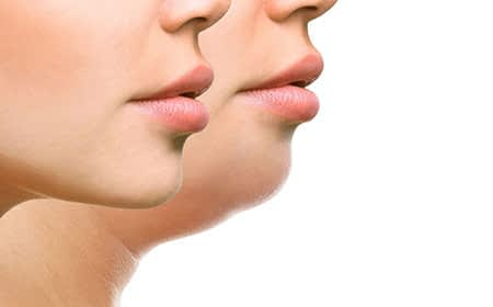 Double Chin reduction treatment in Kochi