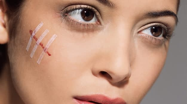 Scar Removal Treatment Skin Clinic in Kochi