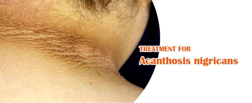 Acanthosis Nigricans Treatment Skin Clinic Kochi
