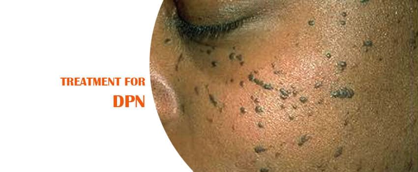 DPN - Treatment Skin Clinic Kochi