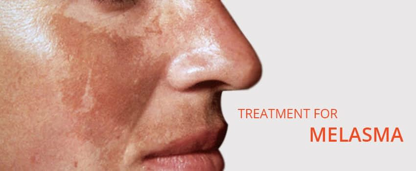 Melasma Treatment Skin Clinic Kochi