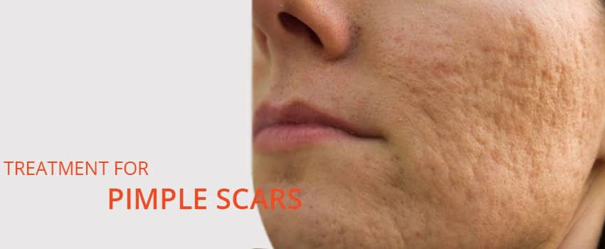Pimple scars Treatment Skin Clinic Kochi