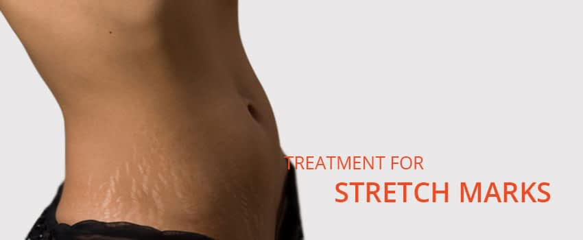Stretch Marks Treatment Skin Clinic Kochi