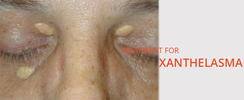 Xanthelasma Treatment Skin Clinic Kochi